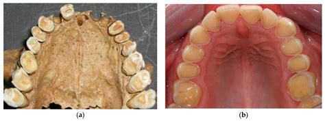 Dentistry Journal | Free Full-Text | Erosive and